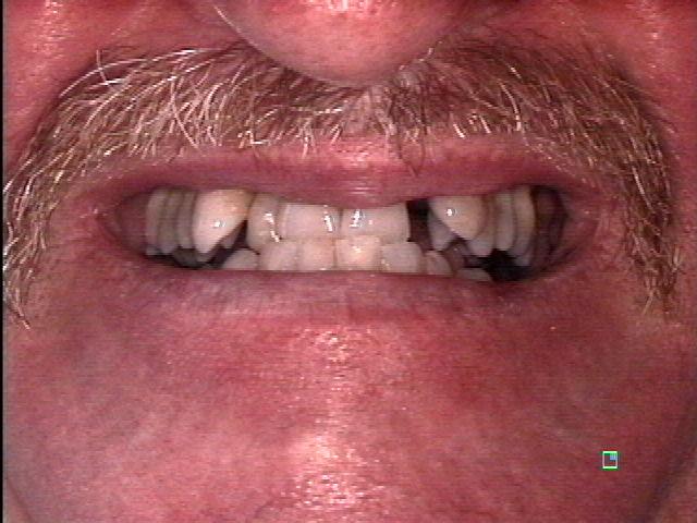 cosmetic dentist battle ground  u2013 daybreak dental